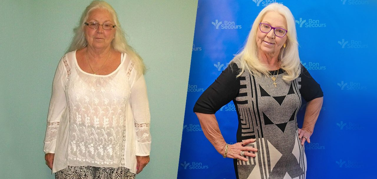 Helene Before and After Her Surgery