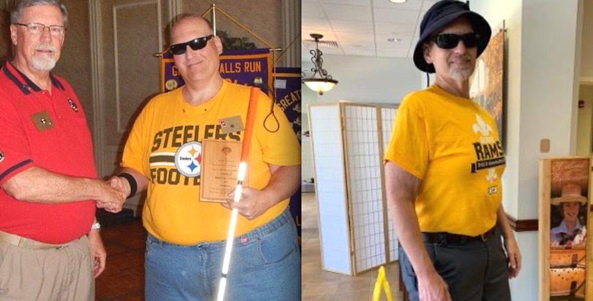 Bernard Werwie before and after weight loss surgery.